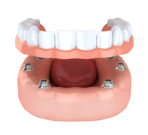 Implant supported denture in Walnut Creek CA