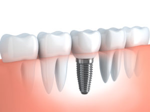 Dental Implants in Walnut Creek